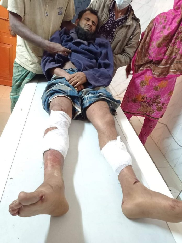 পটুয়াখালীর কলাপাড়ায় সন্ত্রাসী হামলায় আহত-১